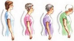 dimafit-benessere-postura